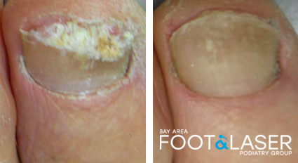 Before and after laser treatment results by Dr. Huey of toenail fungus problem.