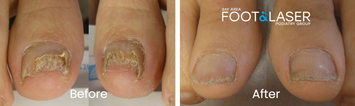 Before and after laser treatment results by Dr. Huey of chronic toenail fungus problem.